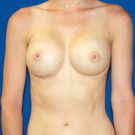 Breast-augmentation_t?1353527566