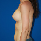 Breast-augmentation_t?1353527570
