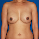 Breast-augmentation_t?1353529838