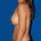 Breast-augmentation_t?1353529842