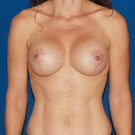 Breast-lift_t?1360043636