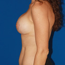 Breast-lift_t?1360043640