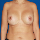 Breast-lift_t?1361765936