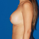 Breast-lift_t?1361765940