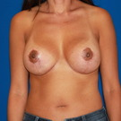 Breast-augmentation-repeat_t?1365566029