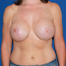 Breast-reduction_t?1366347684