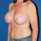Breast-reduction_t?1366347688