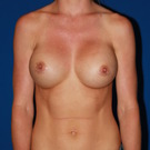 Breast-augmentation-repeat_t?1367890401