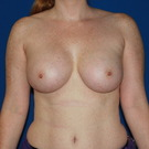 Breast-augmentation_t?1368502260