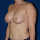 Breast-augmentation_t?1368501372
