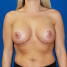 Breast-augmentation-repeat_t?1368503396