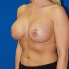 Breast-augmentation-repeat_t?1368503597