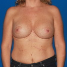 Breast-lift_t?1368507721