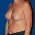 Breast-lift_t?1368507828