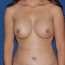 Breast-augmentation_t?1368508754