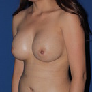 Breast-augmentation_t?1368508885