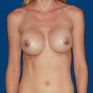 Breast-augmentation_t?1370543696