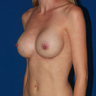 Breast-augmentation_t?1370544290