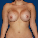 Breast-augmentation_t?1370892162