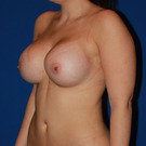 Breast-augmentation_t?1370884281
