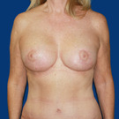 Breast-lift_t?1373731651