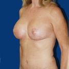 Breast-lift_t?1373731657