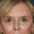 Eyelid-surgery-upper_t?1374862104