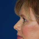 Eyelid-surgery-upper_t?1374862735