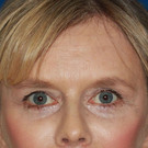 Eyelid-surgery-lower_t?1374865139