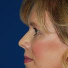 Eyelid-surgery-lower_t?1374865215