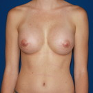 Breast-augmentation_t?1374871151