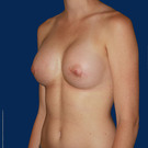 Breast-augmentation_t?1374871522
