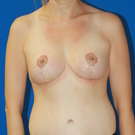 Breast-reduction_t?1415743309