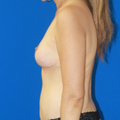 Breast-reduction_t?1415743522