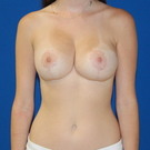 Breast-reduction_t?1415761990