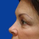 Eyelid-surgery-lower_t