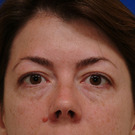 Eyelid-surgery-lower_t