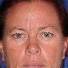 Eyelid-surgery-upper_t