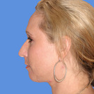 Chin-augmentation_t