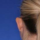 Otoplasty-ear-surgery_t