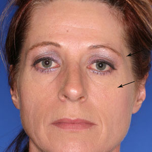 Brow-lift-slash-temple-lift_o?1331023862