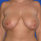 Breast-reduction_t