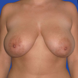 Breast-lift_o?1331024985