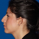 Otoplasty-ear-surgery_t
