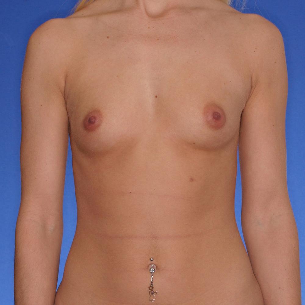 Breast-augmentation_o?1350944890