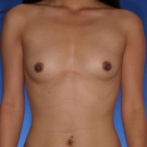 Breast-augmentation_t