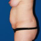 Tummy-tuck_t