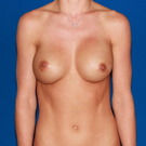 Breast-augmentation-repeat_t