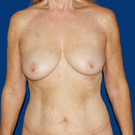 Breast-lift_t