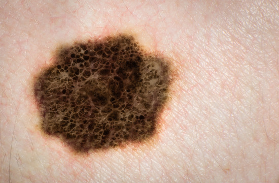 melanoma symptoms